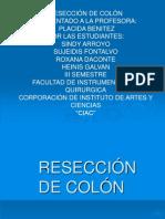 Reseccion de Colon