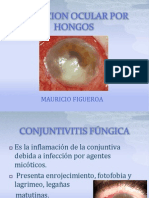 Infeccion Ocular Por Hongos