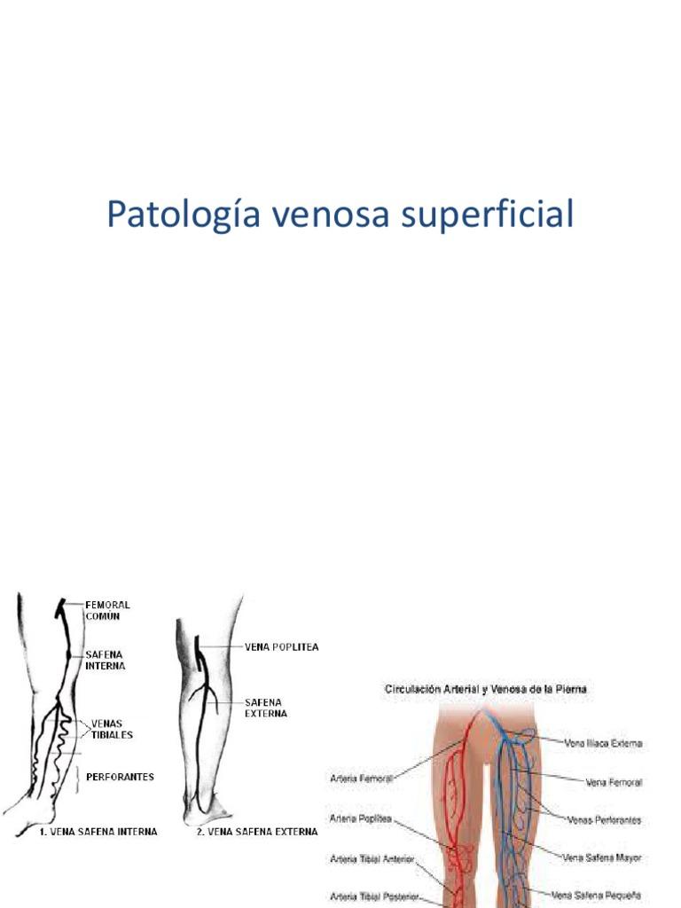 patologia venosa