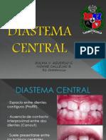 Diastema Central Definitivo 2