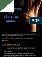 Expo Cance de Mama