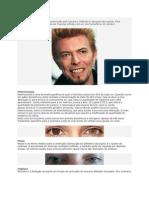 anomalii ochi