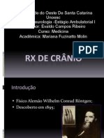 RX de Crânio Normal