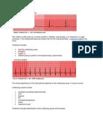 EKG Review 2