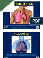 Clase Para Los Alumnos de Clinica Quirurgica Neumotorax Prof. Dr. Luis Del Rio Diez 2012