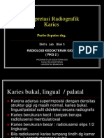 SL_blok 5 Karies Bukal