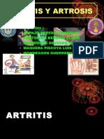 Imagenologia - Artritis y Artrosis