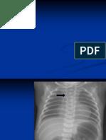 atrezie esofag