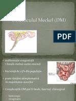 Diverticulul Meckel (DM)