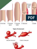 Aneurysm 1