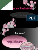 Púrpuras en Pediatría
