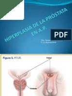 3 Hiperplasia Benigna de Prostata
