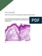 Dermal nerve sheath myxoma