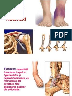 Preparate pentru fracturi articulare