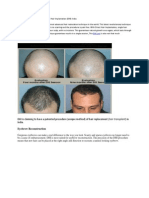 Direct Hair Transplantation (DHI) in India - Cost and Review