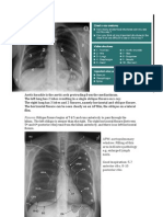 Chest x Ray- Basics