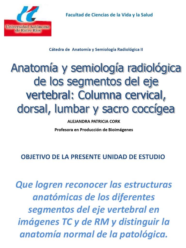 2. Anatomía y semiología radiológica de los segmentos del eje ...