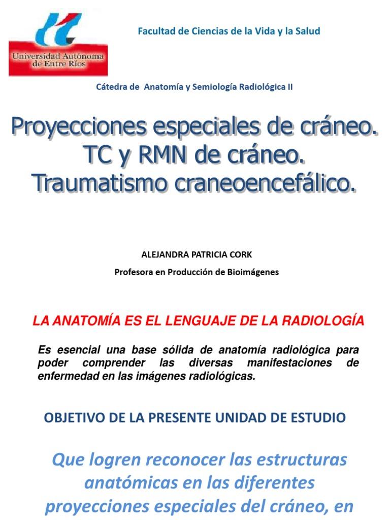 3. Proyecciones especiales de cráneo. TC y RMN de cráneo ...