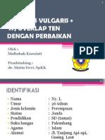 CASE PV+SSJ