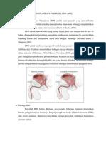 Benigna Prostat Hiperplasia
