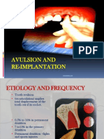 Avulsion and Replantation