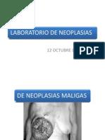 NEOPLASIAS MALIGNAS