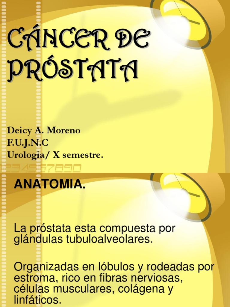 CA. Prostata