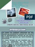 Tumores Beniignos de Los Maxilares