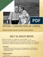 Endoprotesis de Cadera y Ortesis Final