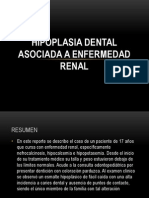 Hipoplasia Dental Asociada a Enfermedad Renal