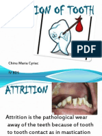 Attrition - Omr