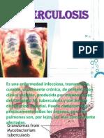 Tuberculosis Vivi