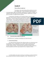 Astrocitoma Definitivo