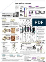 Infografia Osteoporosis