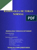 TÃ_rax Normal