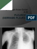Pleuresia (Derrame Pleural) Ppt