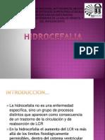 HIDROCEFALIA HOSPI