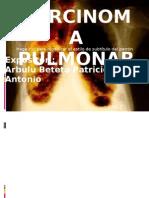 Carcinoma Pulmonar