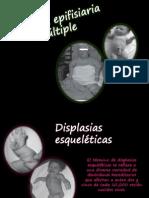 Displasia Epifisaria Multiple