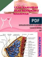 Glandulas Mamaias Patologias Benignas y Malignas