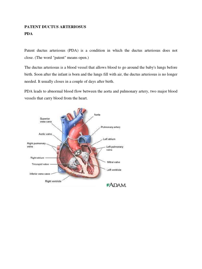 Patent Ductus Arteriosus Aorta Heart
