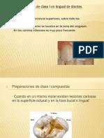 Preparaciones de Clase l en Lingual de Dientes