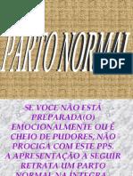 Par to Normal