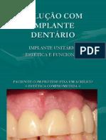Aula Proviso Rio Sobre Implantes