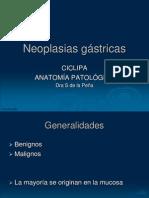 neoplasiasgastricas