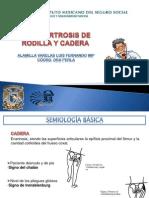 Osteoartrosis de Rodilla y Cadera Def.
