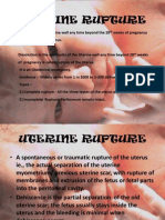 Uterine Rupture