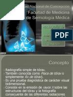 interpretación Rx Torax - Silueta Cardiaca V2