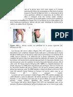 La monoparesia fláccida de la pierna raras veces tiene origen en el sistema nervioso central