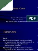 Hernia Crural[2]
